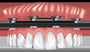 dentureimplants