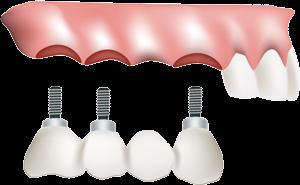 implant-bridge1